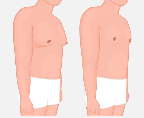 gynecomastie en tunis