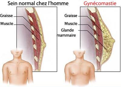 definition gynecomastie