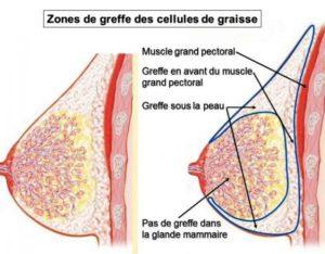 liposilling mammaire