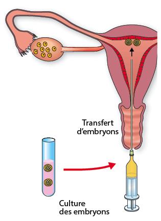 fécondation in vitro tunisie