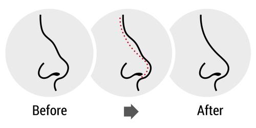 rhinoplastie avant apres