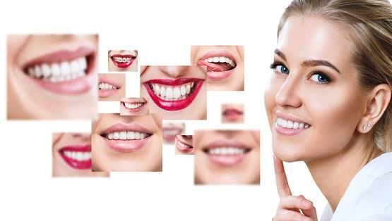 facettes dentaires Tunisie